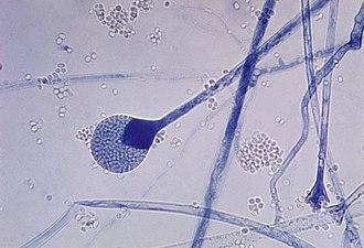 Sporangium - Mature sporangium of an Absidia mold