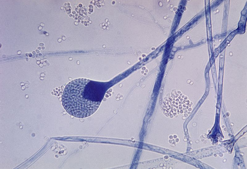 Lêer:Mature sporangium of a Mucor sp. fungus.jpg