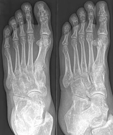 RTG obraz osteopoikilózy na chodidle