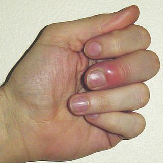 Paronychia nail disease that is an often-tender bacterial or fungal infection of the hand or foot where the nail and skin meet at the side or the base of a finger or toenail