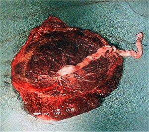 Português: Face fetal de placenta humana. Esta...