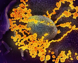 SARS-CoV-2 (yellow) emerging from a human cell