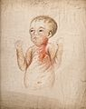 Syphilis; 9-week-old baby with hereditary syphilis, 1856 Wellcome V0010143.jpg