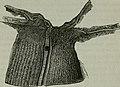 Traité de chirurgie (1897) (14595296309).jpg