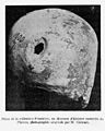 Trephined skull, Neolithic period. Wellcome M0014688.jpg