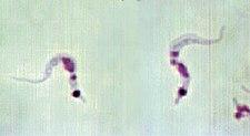 Trypanosoma cruzi zachyceny v trávicím traktu