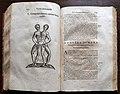 Ulisse aldrovandi, monstrorum historia, per nicola tebaldini, bologna 1642, 221 gemelli siamesi.jpg