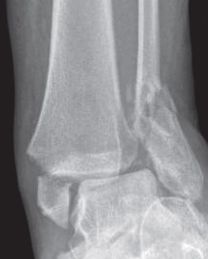 X-ray of bimalleolar fracture