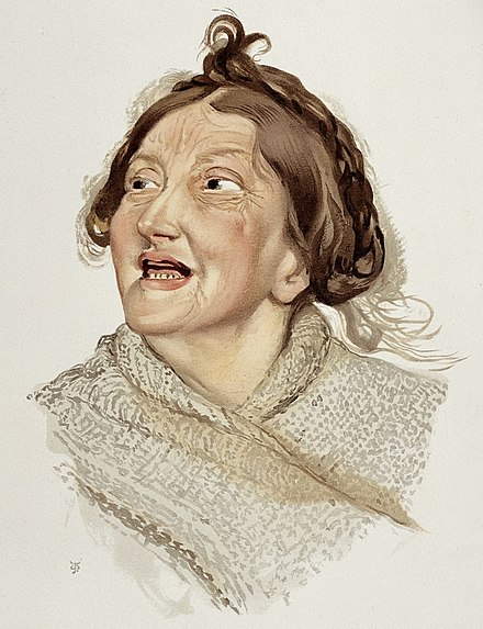 "An 1892 color lithograph depicting a woman diagnosed with ""Hilarious Mania"" A woman diagnosed as suffering from hilarious mania. Colour Wellcome L0026687.jpg"
