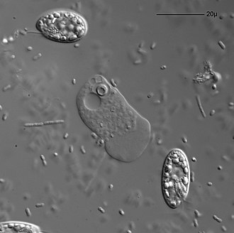 Vahlkampfia - Vahlkampfia is visible in the center. The oval organisms are cryptomonads, the tiny spots and sticks are bacteria