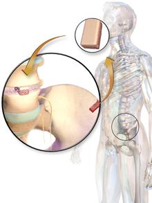 Bone grafting - WikiVisually