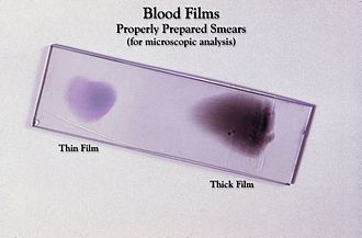 Clinical pathology - Hematology: Blood smears on a glass slide, stained and ready to be examined under the microscope.