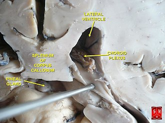 Choroid plexus - Choroid plexus