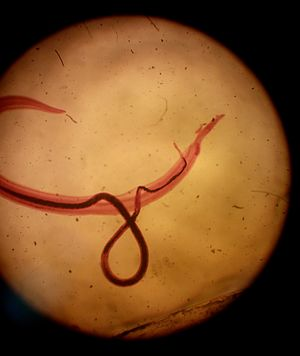 Schistosoma mansoni - Couple of Schistosoma mansoni