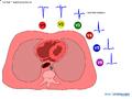 De-Rwaveprogression (CardioNetworks ECGpedia).png