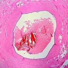 jptodate femminile di dolore pelvico acuto