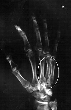 Fourth metacarpal Moondyne.jpg