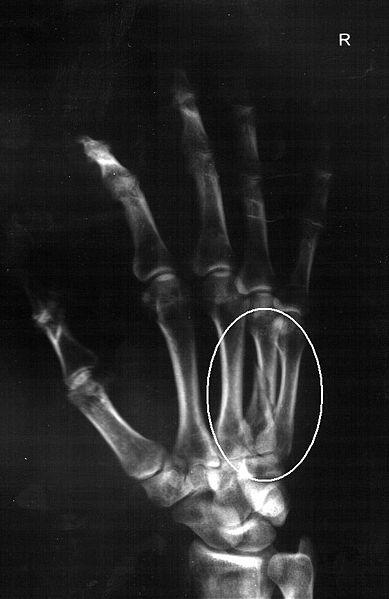 Car Accident Hand Xrays