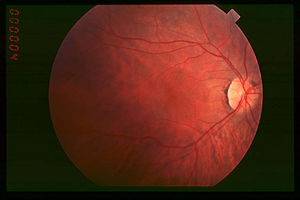 Refractive error - Fundus of person with retinitis pigmentosa, early stage
