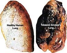 Confronto tra un polmone sano (a sinistra) e di un fumatore (a destra).