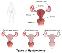 Hysterectomy Wikipedia