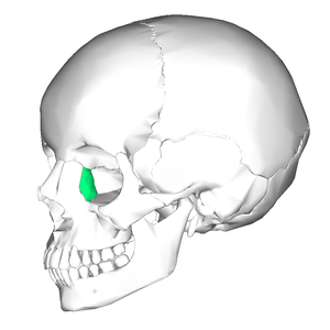 Lacrimal bone - Position of the lacrimal bone (shown in green).