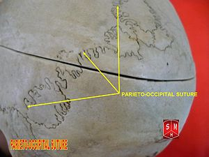Lambdoid suture - Image: Lambdoid suture