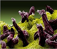 Malaria Plasmodium gallinaceum.jpg