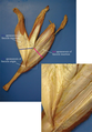 Medial view of a cadaver dissection of the gastrocnemius–soleus junction.png