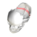 Occipital bone - Groove for transverse sinus4.png
