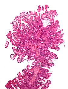 Peutz-Jeghers syndrome polyp.jpg