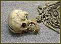 Skelett aus dem spätrömischen Friedhof am Rathausplatz,Todesursache schwere Hiebwunde - panoramio.jpg