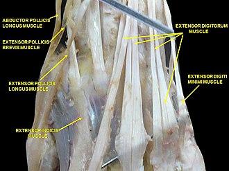 Extensor pollicis longus muscle - Image: Slide 2TAT