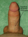 Superficial dorsal vein of the penis (erect).png