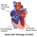 Tetralogy of Fallot Part 1.png