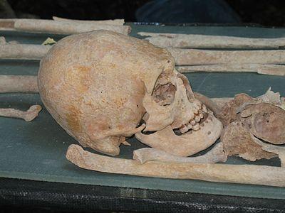 Череп со следами искусственной деформации из захоронения аланов на склонах пещерного города Мангуп-Кале (Крым).jpg