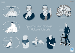 Multiple sclerosis signs and symptoms - Wikipedia
