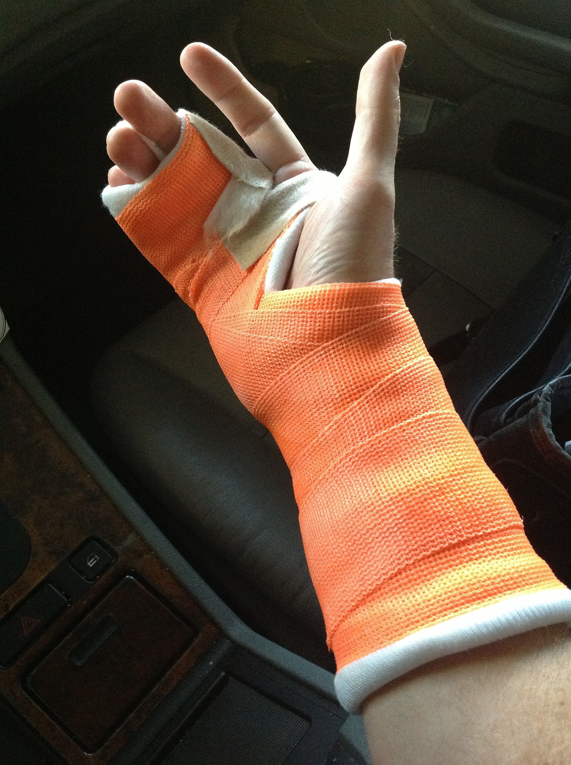 Different Colors Of Purple File Broken Right Hand In Orange Cast Jpg Wikimedia Commons