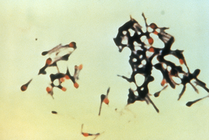 Clostridium tetani - Clostridium tetani with characteristic 'tennis racket' appearance.