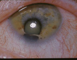 Coloboma eye disease characterized by missing pieces of tissue in structures that form the eye, such as the iris, retina, choroid or optic disc