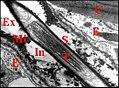 Corps tubulaire dans un dendrite de neurone.jpg