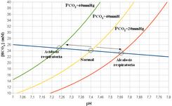 Alcalosis Metabolica Compensada Pdf