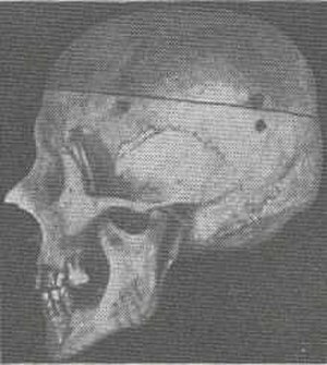 """Dinaric race - An illustration showing a """"Dinaric skull"""" from Hans F. K. Günther's Racial Elements of European History (1927)"""
