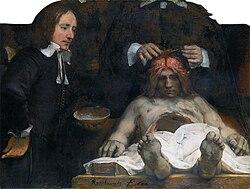 Rembrandt: De anatomische les van Dr. Deijman