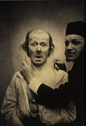 "Duchenne de Boulogne - Duchenne and his patient, an ""old toothless man, with a thin face, whose features, without being absolutely ugly, approached ordinary triviality"""