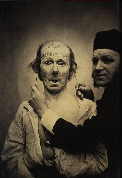 http://upload.wikimedia.org/wikipedia/commons/thumb/c/c7/Guillaume_Duchenne_de_Boulogne_performing_facial_electrostimulus_experiments_%283%29.jpg/411px-Guillaume_Duchenne_de_Boulogne_performing_facial_electrostimulus_experiments_%283%29.jpg