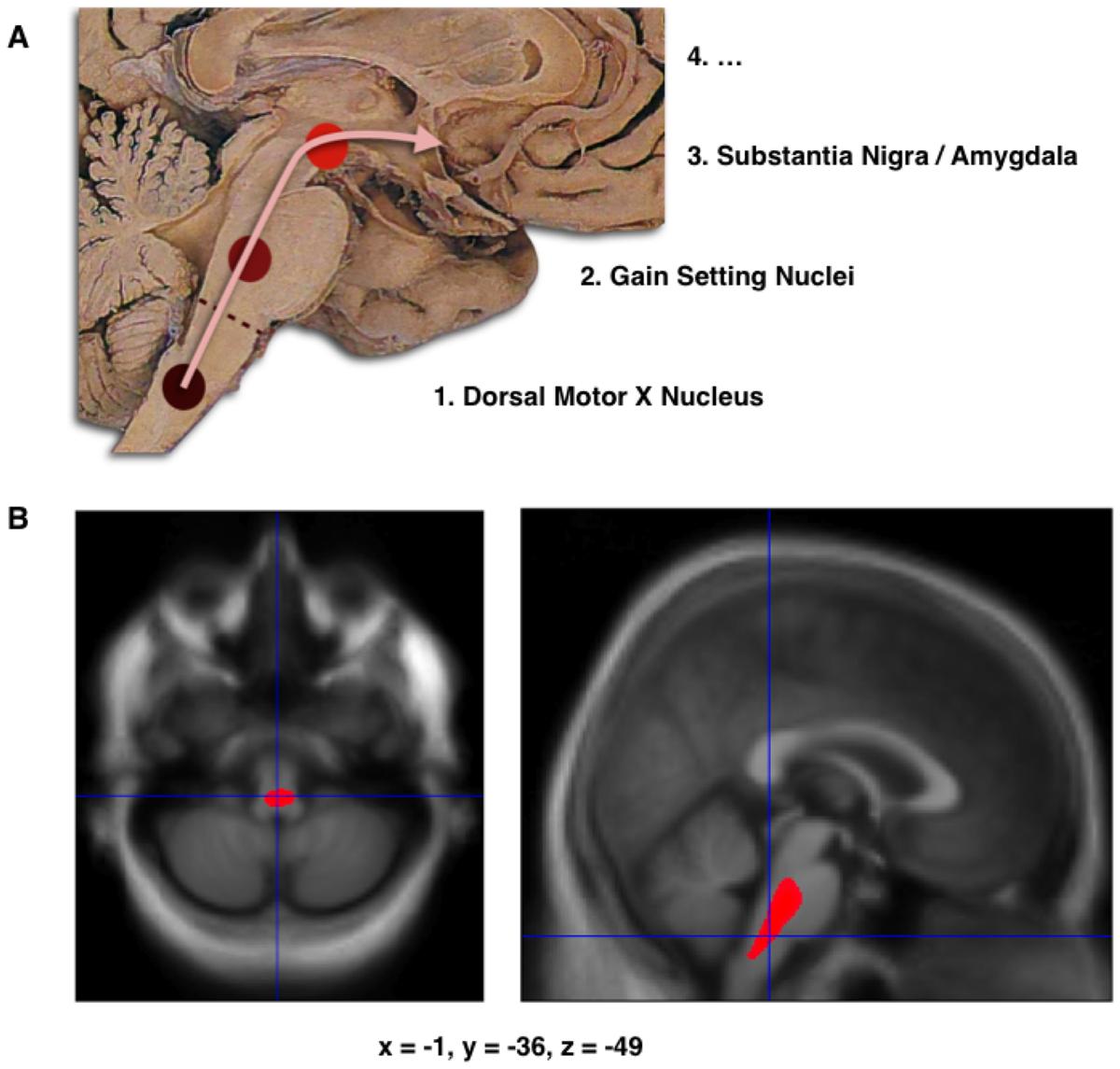 Parkinson: Braak Staging