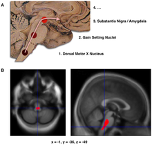 "Composite of three images, one in top row (referred to in caption as A), two in second row (referred to as B). Top shows a mid-line sagittal plane of the brainstem and cerebellum. There are three circles superimposed along the brainstem and an arrow linking them from bottom to top and continuing upward and forward towards the frontal lobes of the brain. A line of text accompanies each circle: lower is ""1. Dorsal Motor X Nucleus"", middle is ""2. Gain Setting Nuclei"" and upper is ""3. Substantia Nigra/Amygdala"". The fourth line of text above the others says ""4. ..."". The two images at the bottom of the composite are magnetic resonance imaging (MRI) scans, one sagittal and the other transverse, centred at the same brain coordinates (x=-1, y=-36, z=-49). A colored blob marking volume reduction covers most of the brainstem."