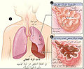 Lobar pneumonia illustrated-ar.jpg