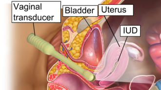 Gynecologic ultrasonography - Transvaginal ultrasonography to check the location of an intrauterine device (IUD).